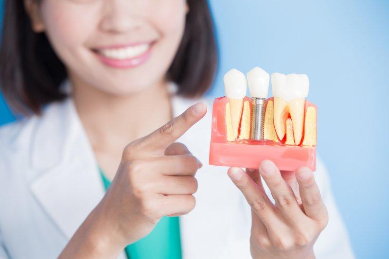 Dentist holding model of dental implants